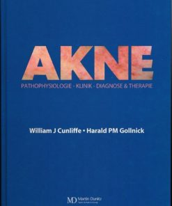 Akne – Pathophysiologie-Klinik-Diagnose&Therapie